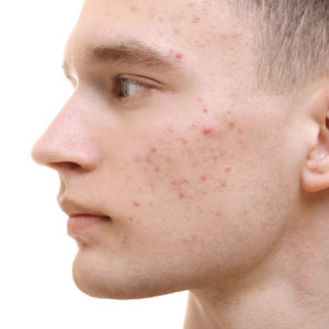 Read more about the article Acne (Pimples) – Causes, Types, Best Treatments in 2020 & 2021