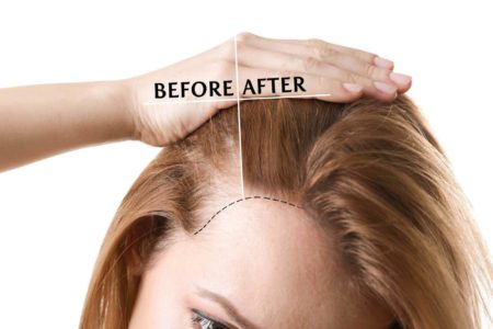 Read more about the article Alopecia and Hair Loss – 2021 Causes, Symptoms, Types and Treatments You Need to Know