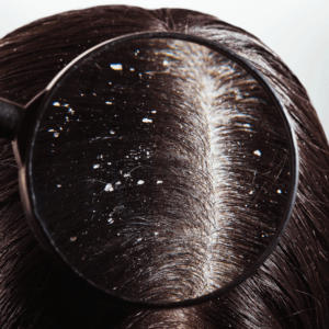Dandruff – Causes, Types, Best Treatments in 2021