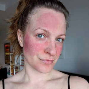 Rosacea on Skin – Symptoms, Causes, Pictures and Best Treatments in 2020