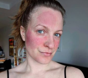Rosacea on Skin – Symptoms, Causes, Pictures and Best Treatments in 2021